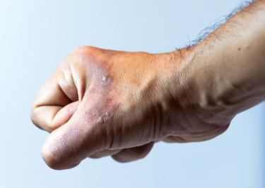 burned hand